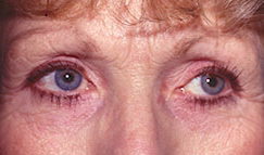17-Eyelid-Lift-After.jpg