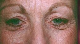 17-Eyelid-Lift-Before.jpg