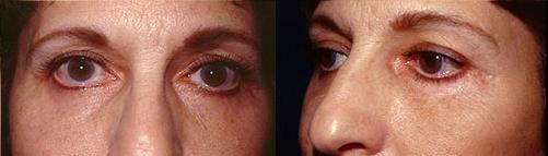 18-Eyelid-Lift-After.jpg