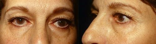 18-Eyelid-Lift-Before.jpg
