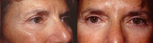 19-Eyelid-Lift-After.jpg
