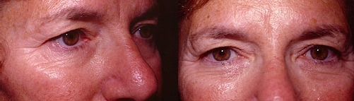 19-Eyelid-Lift-Before.jpg