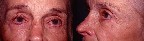 20-Eyelid-Lift-After.jpg