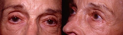 20-Eyelid-Lift-Before.jpg