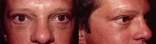 21-Eyelid-Lift-After.jpg