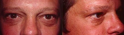 21-Eyelid-Lift-Before.jpg
