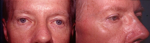 22-Eyelid-Lift-After.jpg