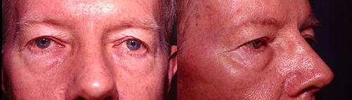 22-Eyelid-Lift-Before.jpg