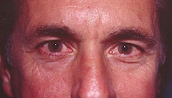 23-Eyelid-Lift-Before.jpg