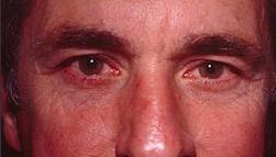 23-Eyelid-Lift-After.jpg