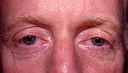 24-Eyelid-Lift-Before.jpg
