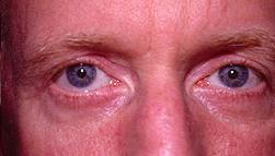 24-Eyelid-Lift-After.jpg
