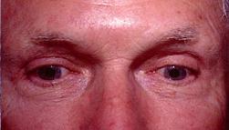 25-Eyelid-Lift-After.jpg