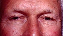 25-Eyelid-Lift-Before.jpg