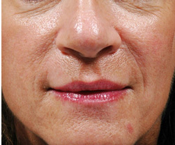 7-Injectable-Fillers-After.jpg