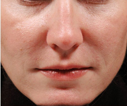 8-Injectable-Fillers-After.jpg