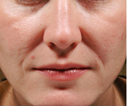 8-Injectable-Fillers-Before.jpg