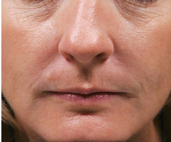 9-Injectable-Fillers-After.jpg
