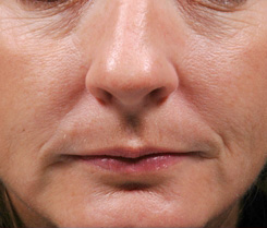 9-Injectable-Fillers-BEfore.jpg