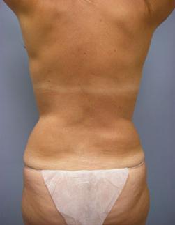 28-Laser-Assisted-Liposuction-After.jpg
