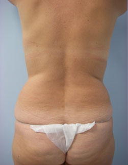 28-Laser-Assisted-Liposuction-Before.jpg