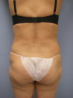 29-Laser-Assisted-Liposuction-After.jpg