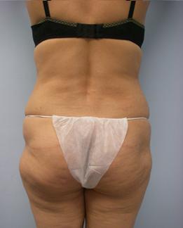29-Laser-Assisted-Liposuction-BEfore.jpg