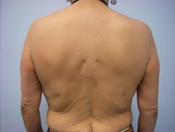 30-Laser-Assisted-Liposuction-After.jpg