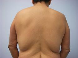 30-Laser-Assisted-Liposuction-Before.jpg