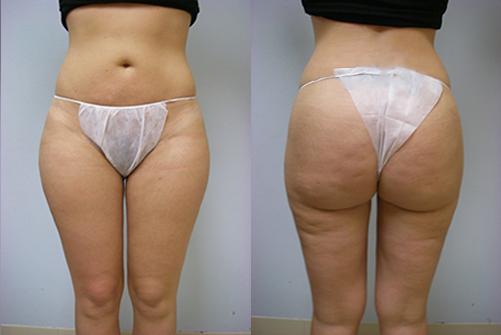 31-Laser-Assisted-Liposuction-After.jpg