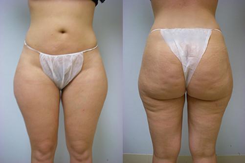 31-Laser-Assisted-Liposuction-Before.jpg