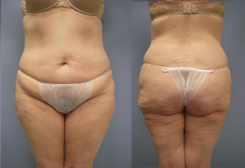 32-Laser-Assisted-Liposuction-After.jpg