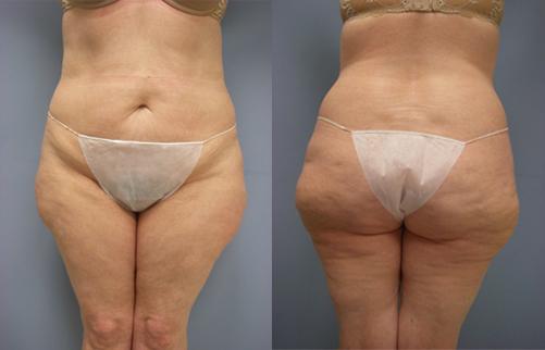 32-Laser-Assisted-Liposuction-Before.jpg