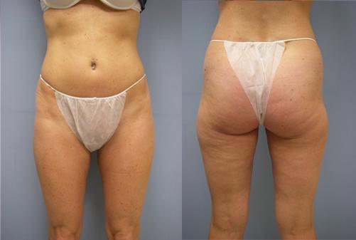 33-Laser-Assisted-Liposuction-After.jpg