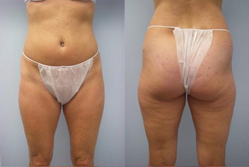 33-Laser-Assisted-Liposuction-Before.jpg