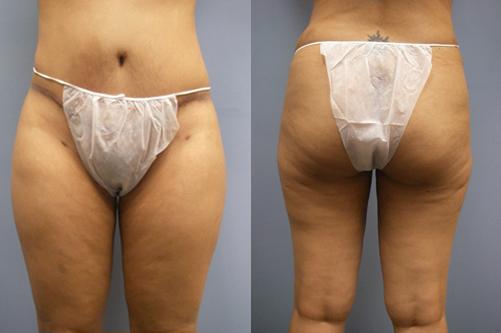 34-Laser-Assisted-Liposuction-After.jpg