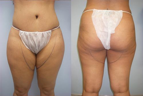 34-Laser-Assisted-Liposuction-Before.jpg
