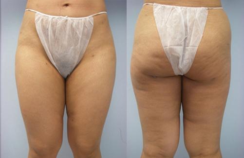 35-Laser-Assisted-Liposuction-After.jpg