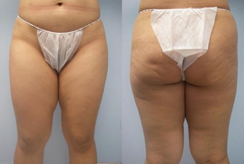 35-Laser-Assisted-Liposuction-Before.jpg