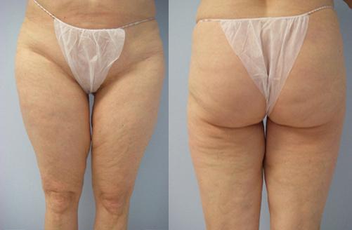 36-Laser-Assisted-Liposuction-Before.jpg