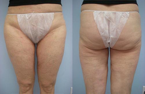36-Laser-Assisted-Liposuction-After.jpg