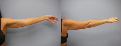 37-Laser-Assisted-Liposuction-After.jpg