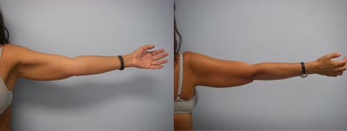 37-Laser-Assisted-Liposuction-Before.jpg