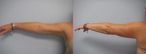 38-Laser-Assisted-Liposuction-After.jpg