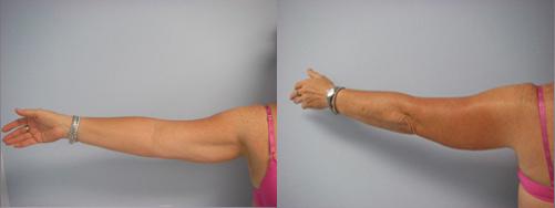 38-Laser-Assisted-Liposuction-Before.jpg