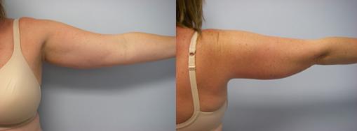 39-Laser-Assisted-Liposuction-Before.jpg