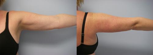 39-Laser-Assisted-Liposuction-After.jpg