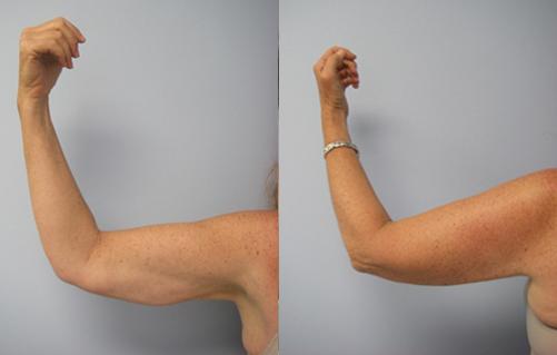 40-Laser-Assisted-Liposuction-After.jpg