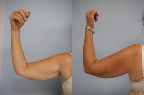 40-Laser-Assisted-Liposuction-Before.jpg