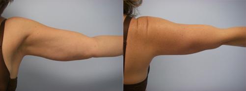 41-Laser-Assisted-Liposuction-After.jpg
